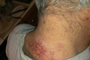 Morgellons Disease to Get CDC Scrutiny