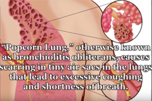 Popcorn Lung Reported in Consumers