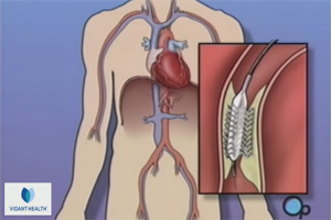 Panel weighs in on stents