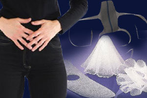 Transvaginal Mesh and Pelvic Sling Devices Can Cause Painful Injuries