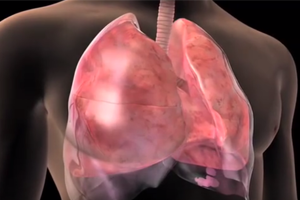 Lung Cancer Study