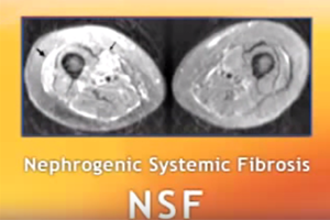Information: What Is NSF / NFD