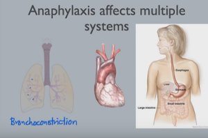 Delayed-Onset Anaphylaxis