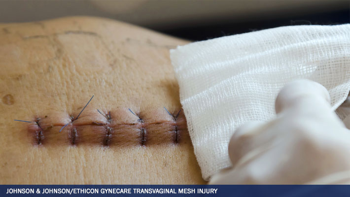 Ethicon Lawsuits - Ethicon Transvaginal And Hernia Mesh