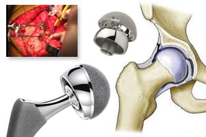 Hip Implant Revision Surgery – What is it and When Is It Needed?