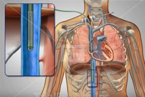 Complications with IVC Filters