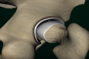 Hip Replacement Patients May Face More Surgery