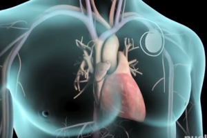 Implantable Heart Devices