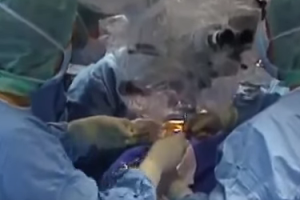Man Says Defective Tissue Transplanted in Surgery