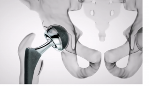 Image of Hip Implant Failure