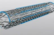 FDA Class I Recall for Bard LifeStent Solo Vascular Stent