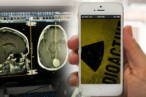 Cell Phones linked to heaths effects Acoustic Neuroma & Cancers