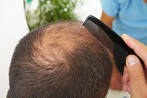 Hair Loss Drug May Lead to Suicidal Thoughts