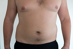 Risperdal Gynecomastia Lawsuits Increase to Over 20,000