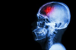 Traumatic Brain Injuries Have a Wide Range of Symptoms