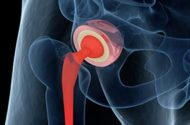 Eligibility Requirements for DePuy ASR Hip Lawsuit Settlements