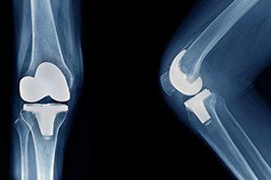 DePuy Attune Knee Replacements Fail due to Adhesion Issues