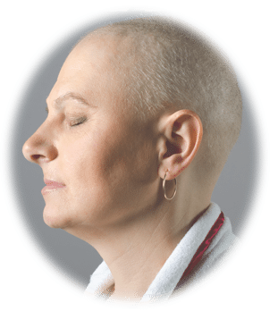 The Deep Psychological Impact of Hair Loss in Women