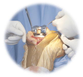 Why Should You Receive A Knee Replacement Implant?