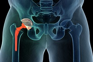 Witness Tampering Allegations in DePuy Hip Implant Trial