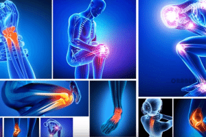 Severe Joint Pain