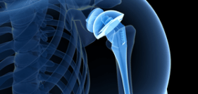 Zimmer Biomet Issues Recall on Comprehensive Reverse Shoulder, Citing High Fracture Rate