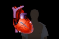 Study Finds Sudden Unexplained Cardiac Death May Be Indicative Of Heart-Related Problems In Other Family Members