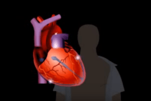 Heart-Related Problems