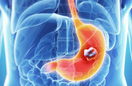 Common Medication May be Linked to Increased Gastric Cancer Risk