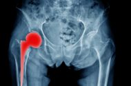 Total Hip Arthroplasty Lawsuit Lawyers