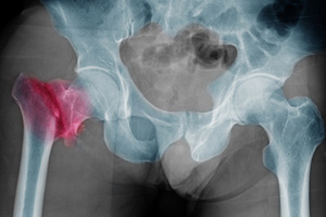 Hip replacements can be deadly