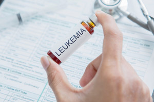 Myeloid Leukemia Attorneys