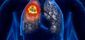 ACE Inhibitors Link to Lung Cancer