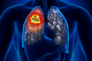 ACE Inhibitor lung cancer