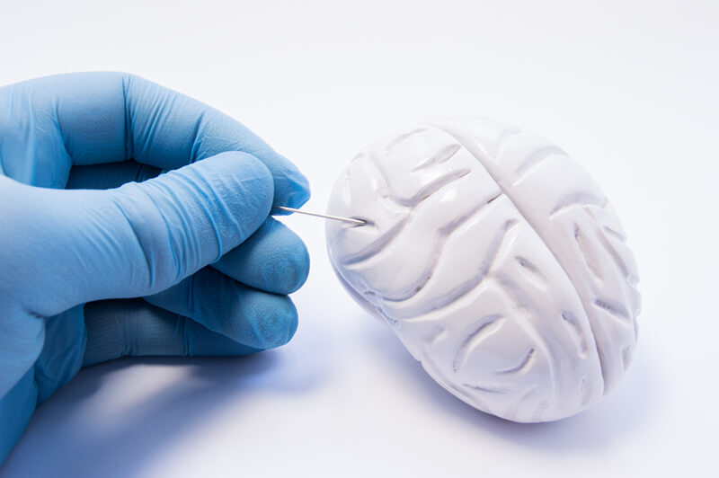 A gloved hand piercing a brain as an abstract representation of the NeuroBlate system