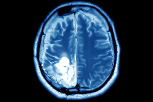NeuroBlate Injury Lawsuits