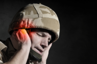 Hearing Risks Associated with 3M Dual-Ended Combat Arms Earplugs