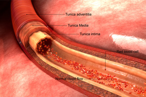 Deaths Linked to Paclitaxel-Coated Balloons & Stents