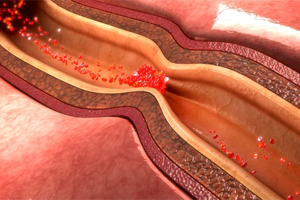 Paclitaxel Vascular Device Injury Lawsuit Lawyers