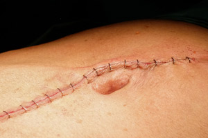 Fda warns of risks with surgical staplers and implantable staples