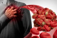 Xeljanz Blood Clots and Deaths: Black-Box Warning Issued