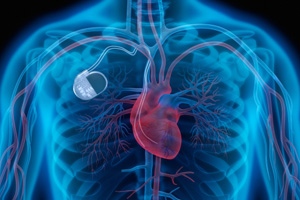 FDA Delayed Recalling Defective Pacemaker for Over One Year