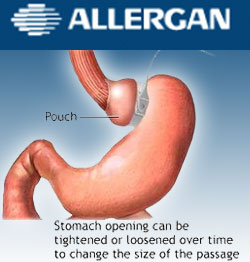 Allergan Hit with Federal Subpoena Over Lap-Band Weight Loss Device