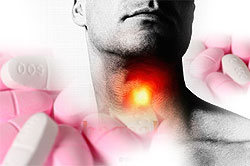 Conflicting Studies on Oral Bisphosphonates, Esophageal Cancer Yield Confusion