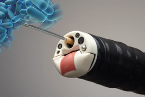 Endoscopy Device May Spread Bacterial Infections