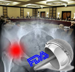 FDA Panel Takes up Metal-on-Metal Hip Implant Safety Today