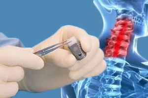 FDA Warning for Bone Graft Products in Patients Under 18