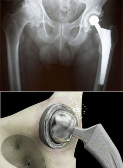 First DePuy ASR Hip Implant Lawsuits Head to Trial in December, January