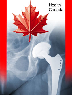 Health Canada Issues Warning for Metal-on-Metal Hip Replacement Dangers