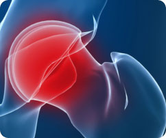 Newer-Joint-Replacement-Systems